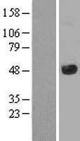 NBL1-12106 - JMJD5 Lysate