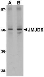 NBP1-77075 - JMJD6 / PTDSR