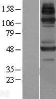 NBL1-12107 - JMJD6 Lysate