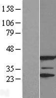 NBL1-12868 - JNK3 Lysate
