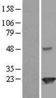NBL1-12109 - JOSD2 Lysate