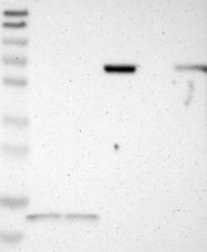 NBP1-83075 - Junctophilin-1 / JHP1