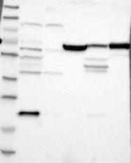 NBP1-83076 - Junctophilin-1 / JHP1