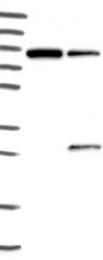 NBP1-87864 - Josephin-1 / JOSD1