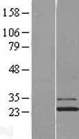 NBL1-12108 - Josephin1 Lysate