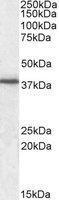 NBP1-36743 - CD321 / JAM1