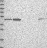 NBP1-87835 - HAT1