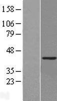 NBL1-11451 - KAT1 Lysate
