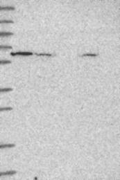 NBP1-92037 - KATNAL1