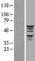 NBL1-12127 - KATNAL1 Lysate