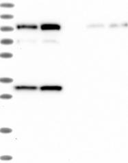 NBP1-85133 - SLC12A7