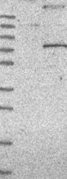 NBP1-81336 - KCND1