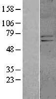NBL1-12145 - KCND1 Lysate