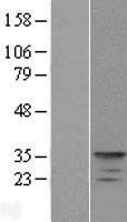 NBL1-12161 - KCNIP4 Lysate
