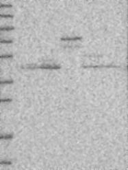 NBP1-82874 - KCNJ1