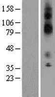 NBL1-12165 - KCNJ13 Lysate