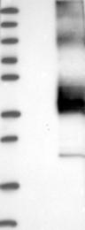 NBP1-84987 - KCNK1