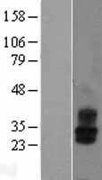 NBL1-12191 - KCNMB2 Lysate