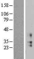 NBL1-12192 - KCNMB2 Lysate