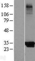 NBL1-12211 - KCTD14 Lysate