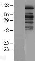 NBL1-17682 - KDM6A Lysate