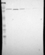 NBP1-81514 - KIAA0323