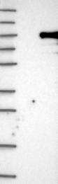 NBP1-86291 - KIAA1586