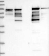 NBP1-80753 - Shootin-1