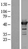 NBL1-12272 - KIAA1609 Lysate