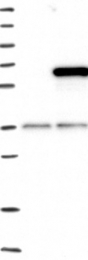 NBP1-86029 - KIF12