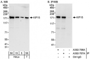 NBP1-46835 - KIF15