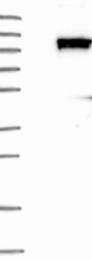 NBP1-85127 - KIF18A