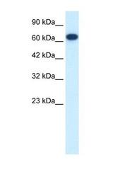 NBP1-58168 - KIF19