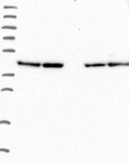 NBP1-92054 - KIF19