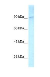 NBP1-58137 - KIF1C