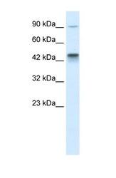 NBP1-58179 - KIF3A