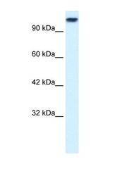 NBP1-58193 - KIF3C