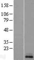 NBL1-12305 - Kisspeptin Lysate