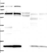 NBP1-83722 - KLC2