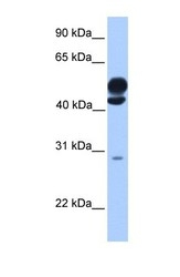NBP1-54771 - Kinesin light chain 3
