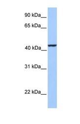 NBP1-54772 - Kinesin light chain 3
