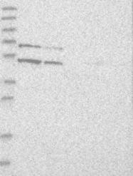 NBP1-82872 - KLF15