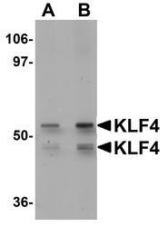NBP1-77382 - KLF4