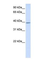 NBP1-55419 - KLHDC2