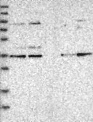 NBP1-85196 - KLHDC3