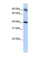 NBP1-57421 - KLHDC8A
