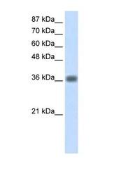 NBP1-57422 - KLHDC8A