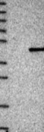 NBP1-84604 - KLHDC8A