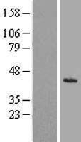 NBL1-12329 - KLHDC8A Lysate
