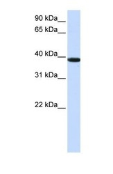 NBP1-70592 - KLHDC8B